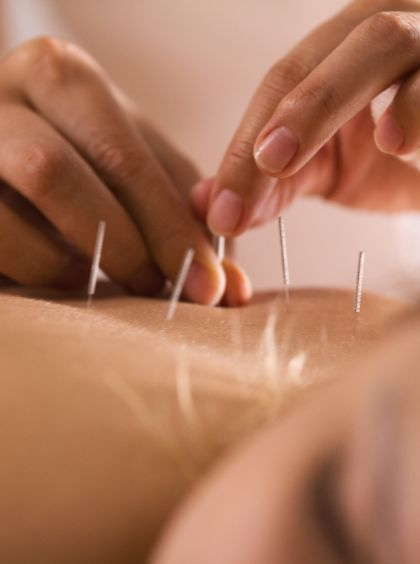 Close up of acupuncture needles being put into someone's back